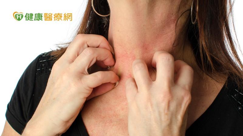 異位性皮膚炎要當心 吃錯食物小心會更癢!