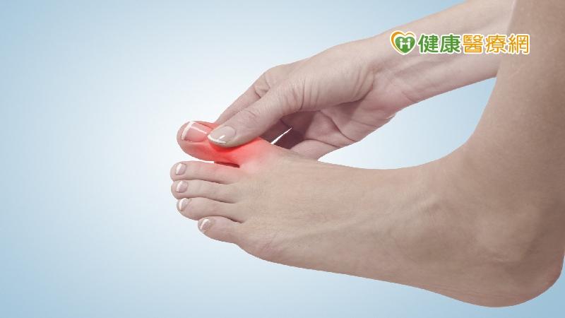 什麼是「爪狀趾」 醫師跟你說清楚_兒童保健食品
