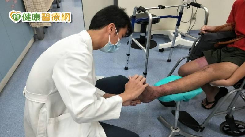 男子遇車禍險截肢 顯微血管皮瓣救回他的腳 _兒童牙齒矯正