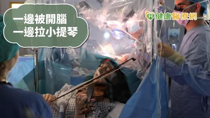 小提琴手長腦瘤 醫師要她一邊開腦一邊拉琴_熱熱喝
